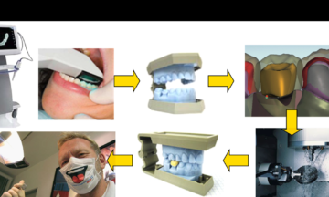 Optic and Lasers in Engineering – Recent advances in dental optics